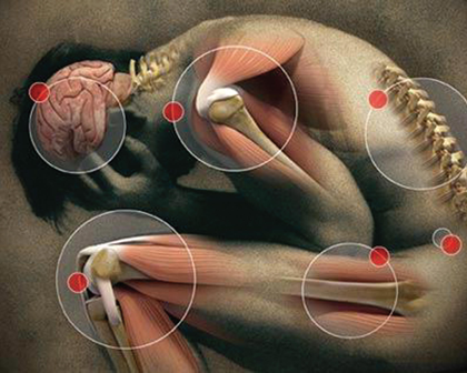 Cannabinoids and the Control of Pain